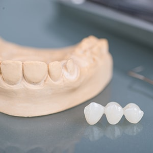 Example of a dental bridge which also involves using a porcelain crown
