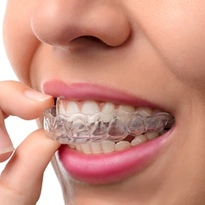 A patient putting on clear Invisalign aligners