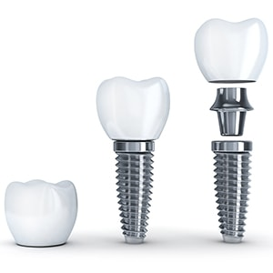The anatomy of a dental implant