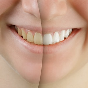 The difference of using professional Zoom! Teeth Whitening
